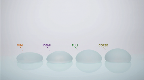 Size and Projection Motiva Implants® Features